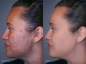 Acne No More Before And After