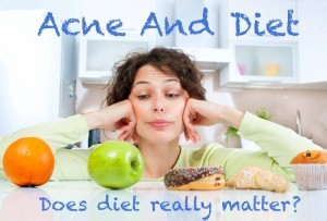 acne-and-diet